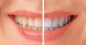 سفید کردن دندان بعد از ارتودنسی