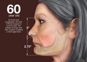 ریزش صورت | ایمپلنت دندان