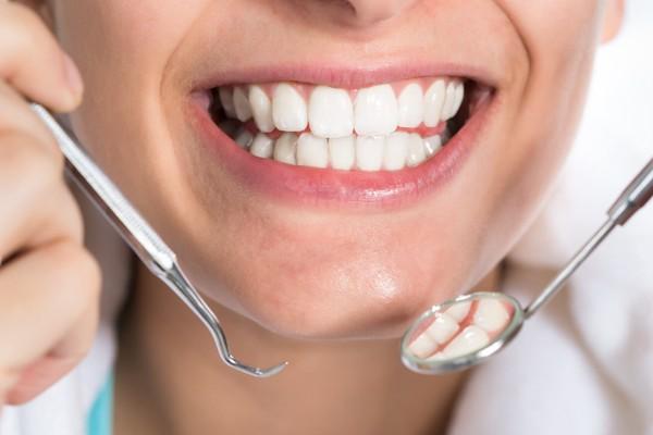 ایمپلنت دندان یا کاشت دندان